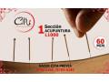 acupuntura-china-small-0