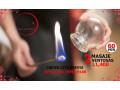 acupuntura-china-small-1