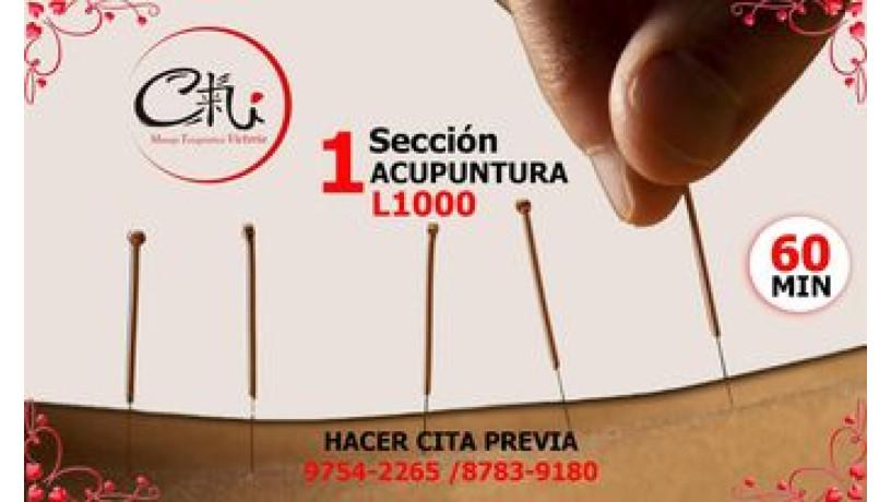 acupuntura-china-big-0