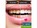 limpieza-dental-gratis-small-1