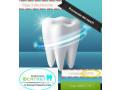 limpieza-dental-gratis-small-2