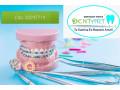 tratamientos-dentales-small-4