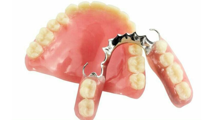 tratamientos-dentales-big-5